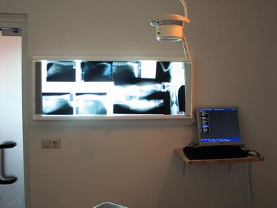 Kijkje spreekkamer 1 ronthgenlichtkast